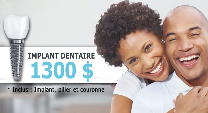 Tarif implant dentaire