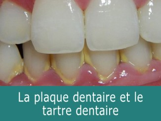 Tartre dentaire