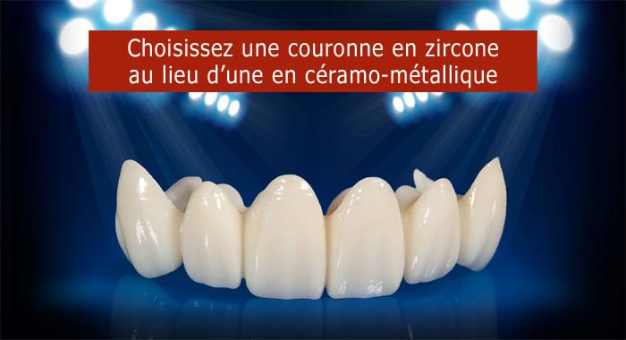 couronne-zircone