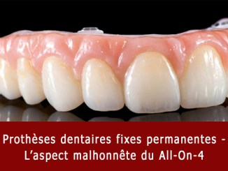 Prothèse pour All-On-4