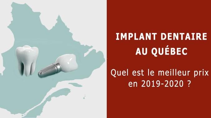 Implant dentaire au Québec