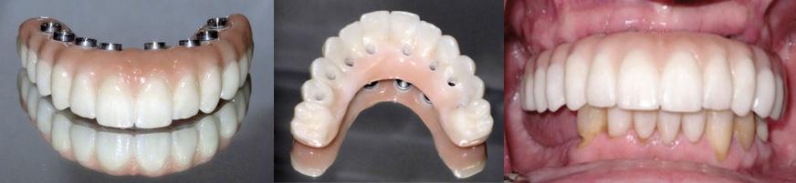 Prothèse fixe permanente en zircone