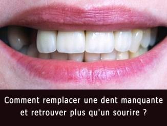 Comment remplacer une dent manquante