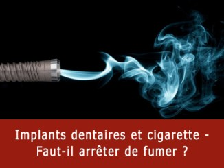Implants dentaires et cigarette