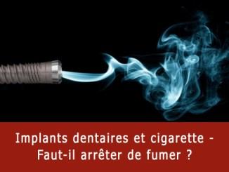 Implants dentaires et cigarette