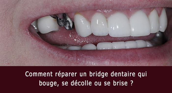 pont-brise