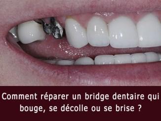 Pont dentaire brisé