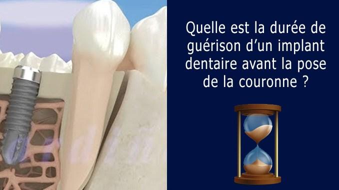 Ostéointegration implant dentaire