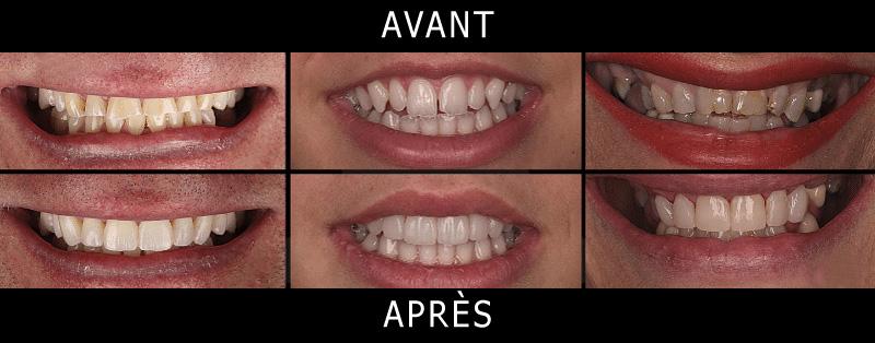 Facettes dentaires avant et après