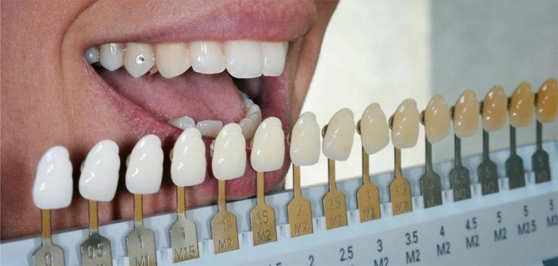 Choisir la couleur de ses dents