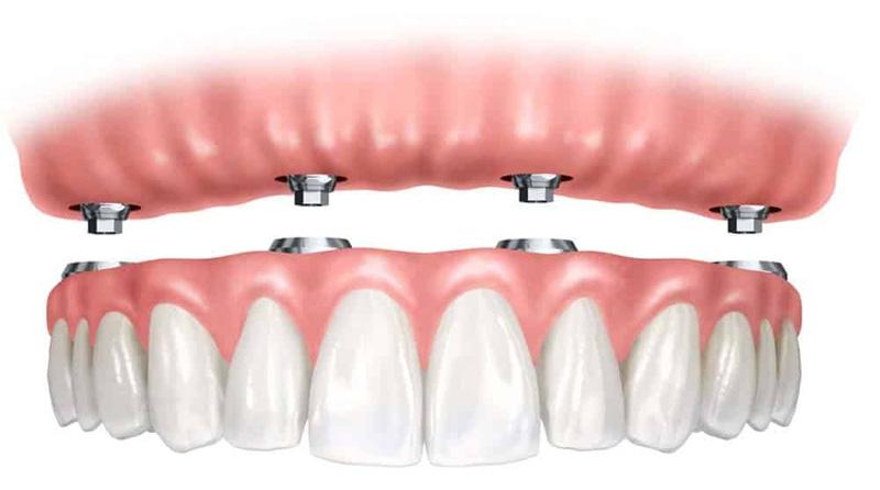 dents-implants