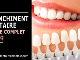 Blanchiment dentaire - Guide et FAQ