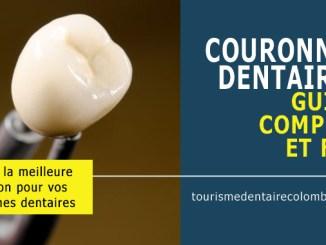 Guide complet sur les couronnes dentaires