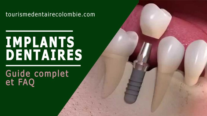 Implant dentaire - Guide complet et FAQ