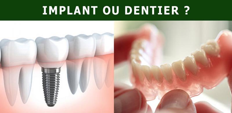 Implant ou prothèse dentaire