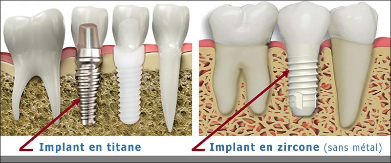 En quoi sont faits les implants dentaires