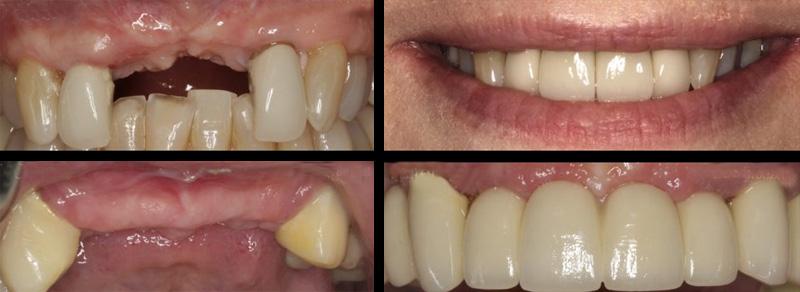 Pourquoi avoir besoin d'un implant dentaire