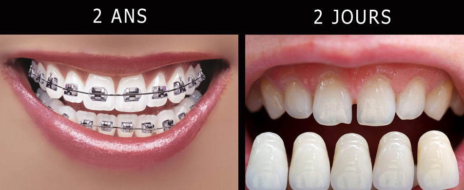 orthodontie-facette