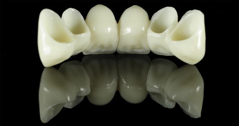 Combien peut-on remplacer de dents sur un pont
