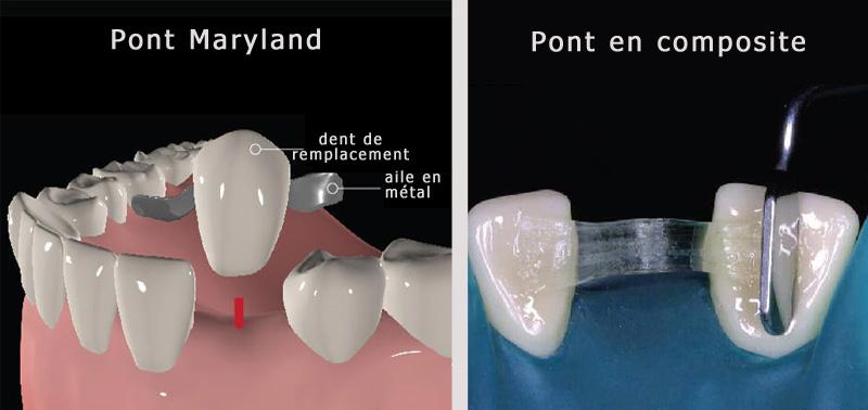 Types de bridges dentaires