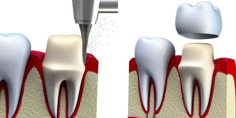 Installer une couronne dentaire