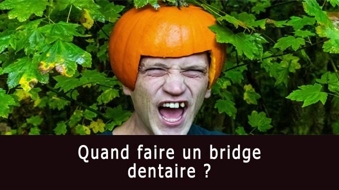 Quand faire un bridge dentaire ?