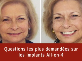 Questions sur les implants all-on-4
