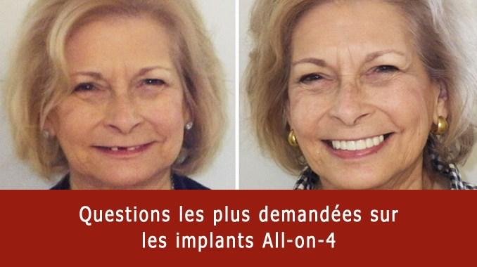 Questions sur les implants all-on-4