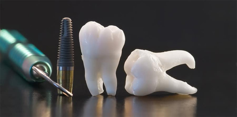 risques-implants
