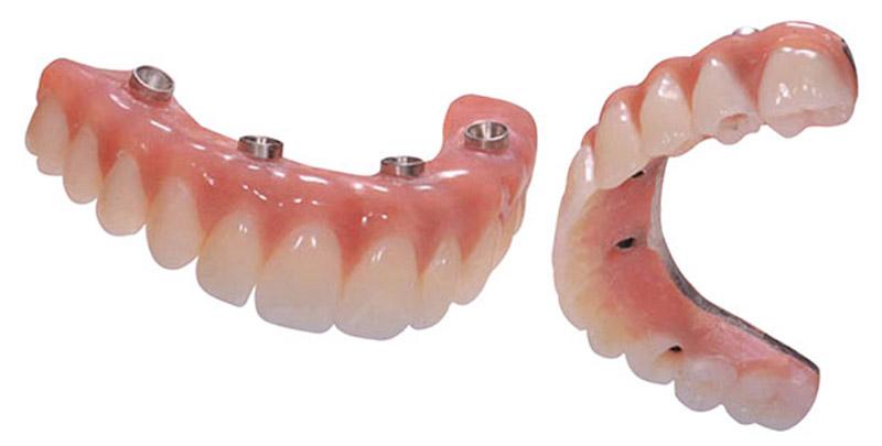All-on-4 type de matériau pour prothèse