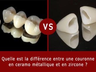 Couronne dentaire ceramo métallique