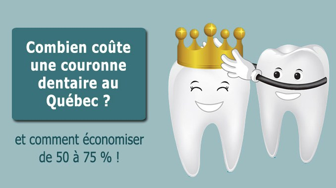 Prix couronne dentaire au Québec