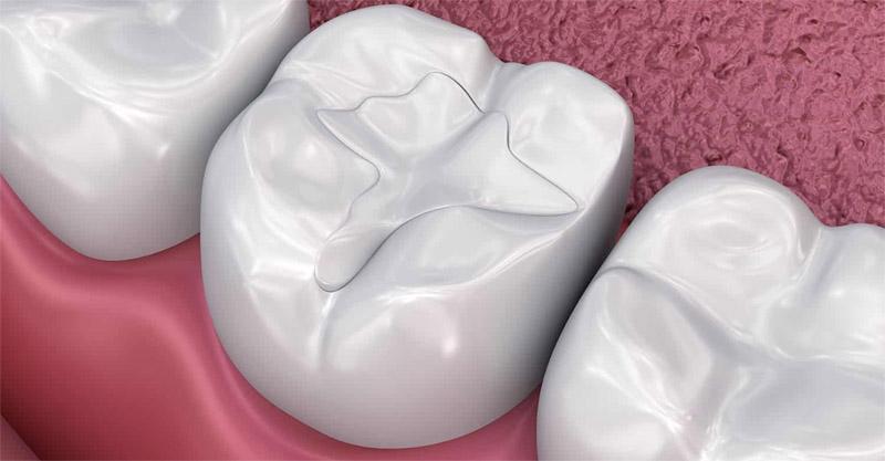 Obturation dentaire