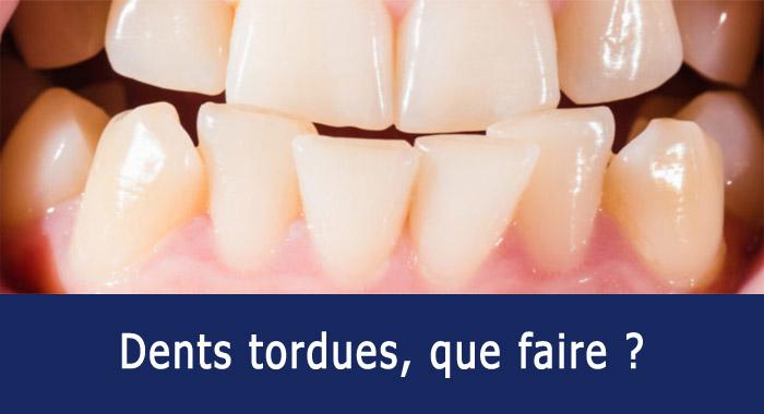 dents-tordues