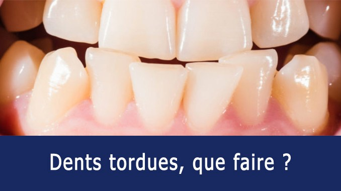 Dents tordues