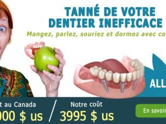 Dentier fixe sur implants