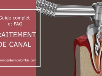 Guide traitement de canal