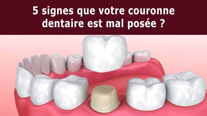 Couronne dentaire mal posée