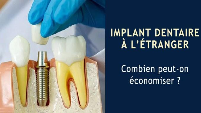 Implant dentaire à l'étranger