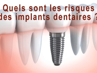 Implants dentaires risques
