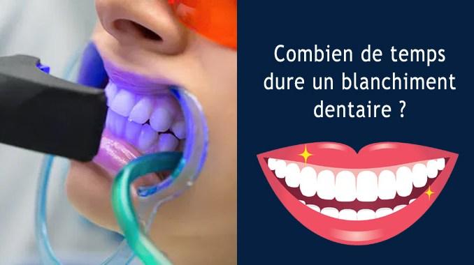 Combien de temps dure un blanchiment dentaire