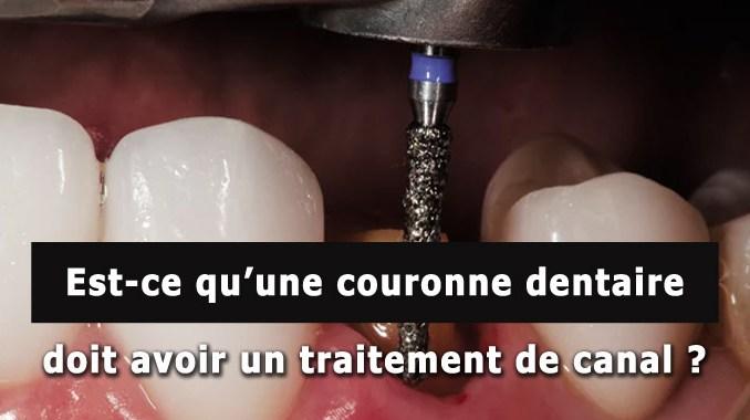 Est-ce qu'une couronne dentaire doit avoir un traitement de canal ?