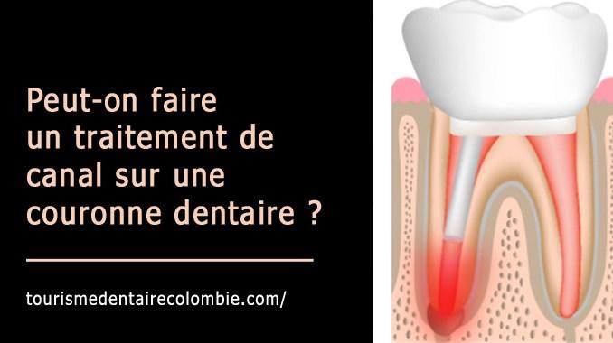 Traitement de canal sur couronne dentaire
