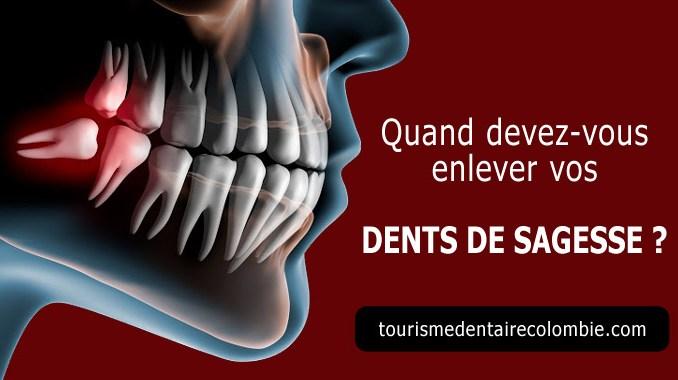 Quand devez-vous enlever vos dents de sagesse ?