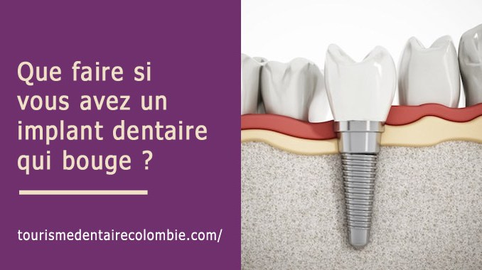 Implant dentaire qui bouge