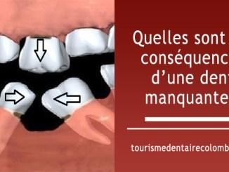 Quelles sont les conséquences d'une dent manquante ?