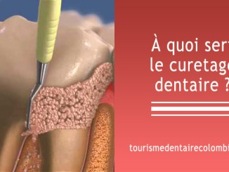 Curetage dentaire