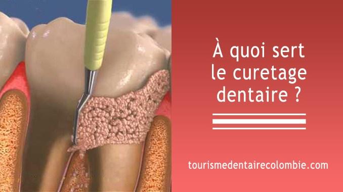 Curetage dentaire