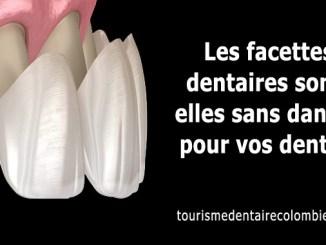 Les facettes dentaires sont-elles sans danger pour vos dents ?