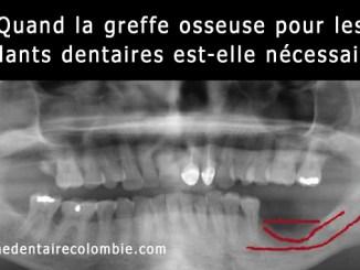 greffe osseuse pour les implants